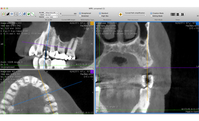 We need to check your bone with CT = 3D X-ray